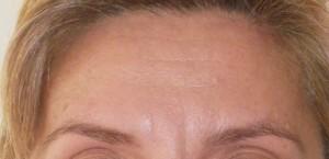 Botox Apres
