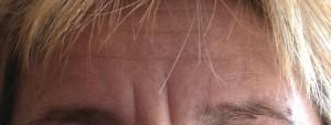 Botox Avant