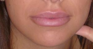 Botox Levres Apres