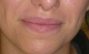 Botox Levres